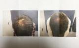 生える❗️頭皮マッサージ術‼️